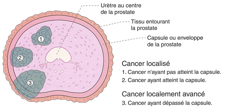 adenocarcinome de la prostate gleason